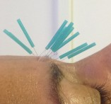 Cosmestic Acupuncture